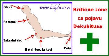 Kritične zone na telu za pojavu decubitusa
